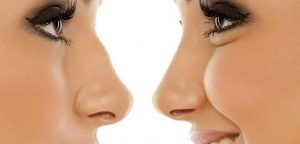 Liquid rhinoplasty the proposal to turn up the nose without surgeries